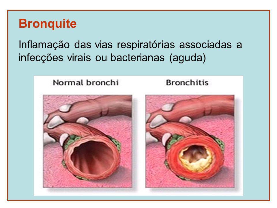 Bronquite Inflamação das vias respiratórias associadas a