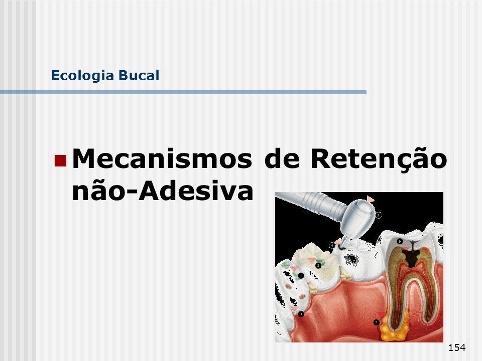 Mecanismos de Retenção não-Adesiva