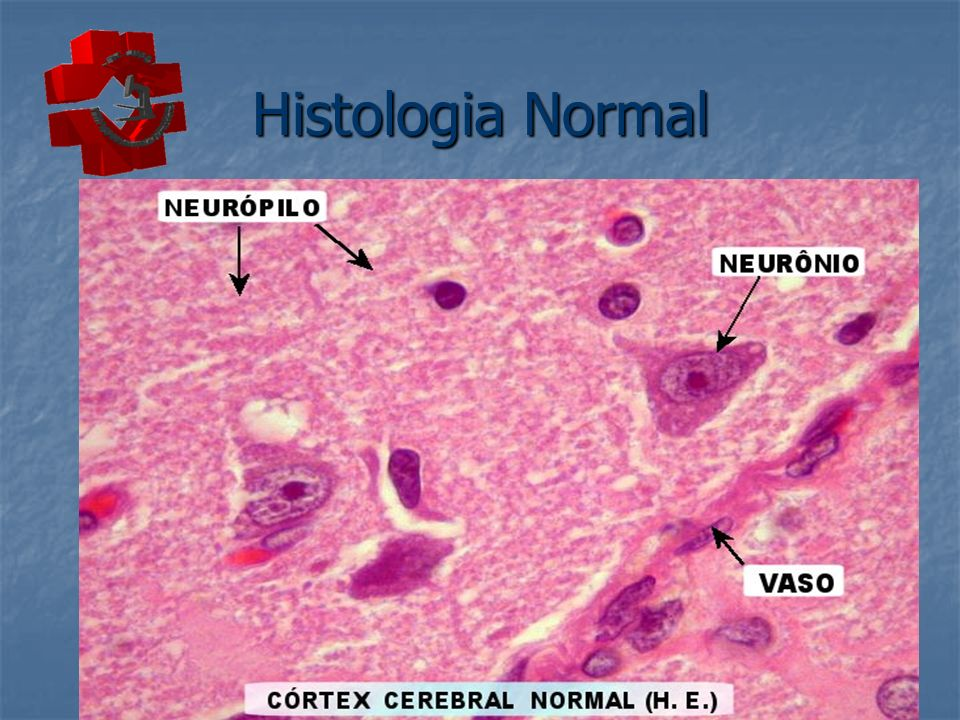 Histologia Normal