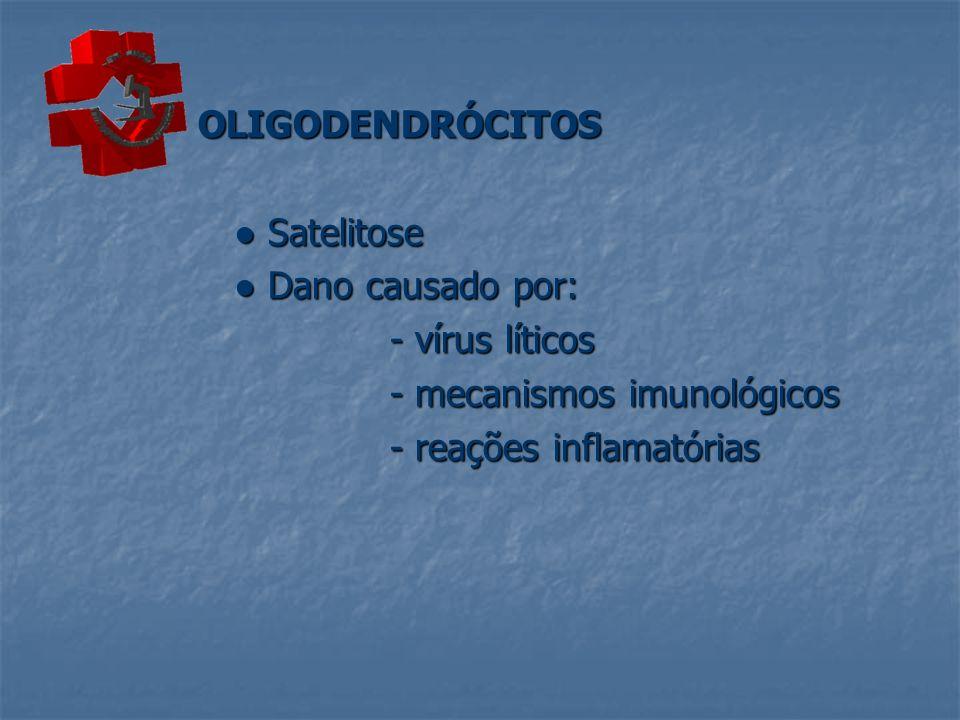 OLIGODENDRÓCITOS● Satelitose.● Dano causado por: - vírus líticos.