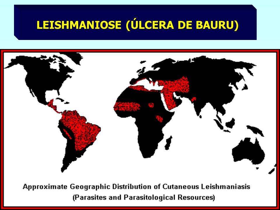 LEISHMANIOSE (ÚLCERA DE BAURU)
