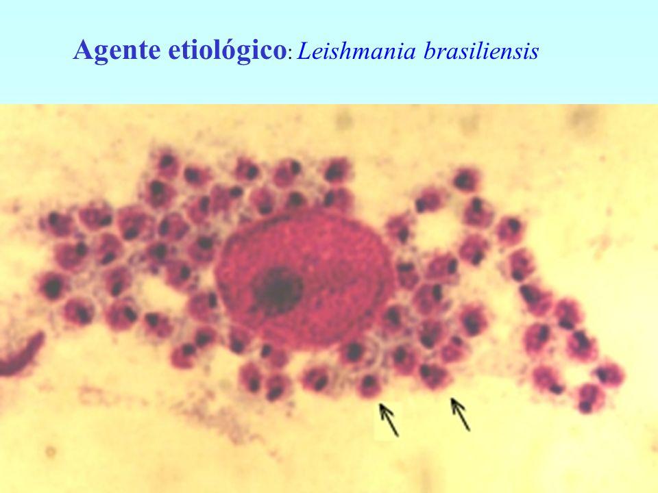 Agente etiológico: Leishmania brasiliensis