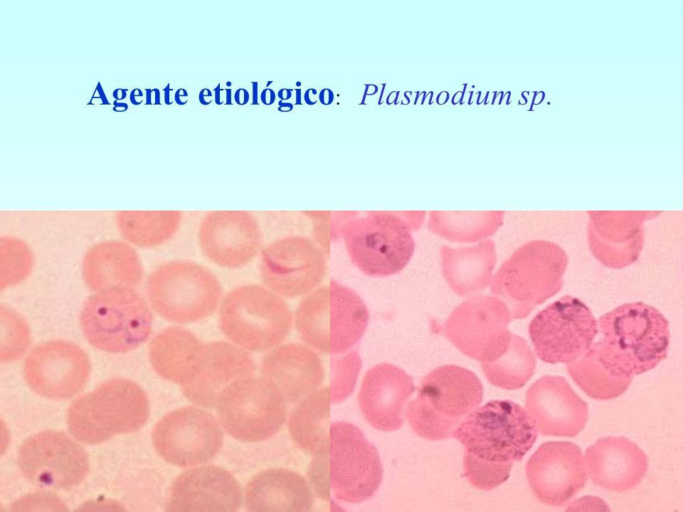 Agente etiológico: Plasmodium sp.