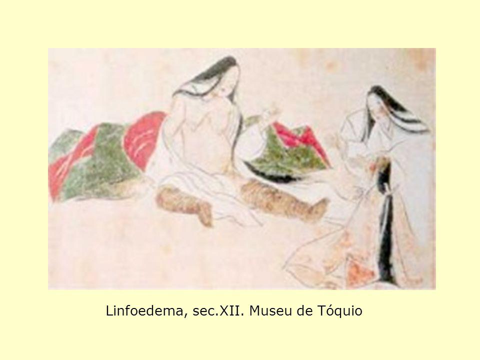 Linfoedema, sec.XII. Museu de Tóquio