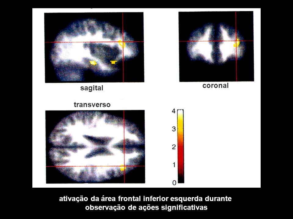 ativação da área frontal inferior esquerda durante