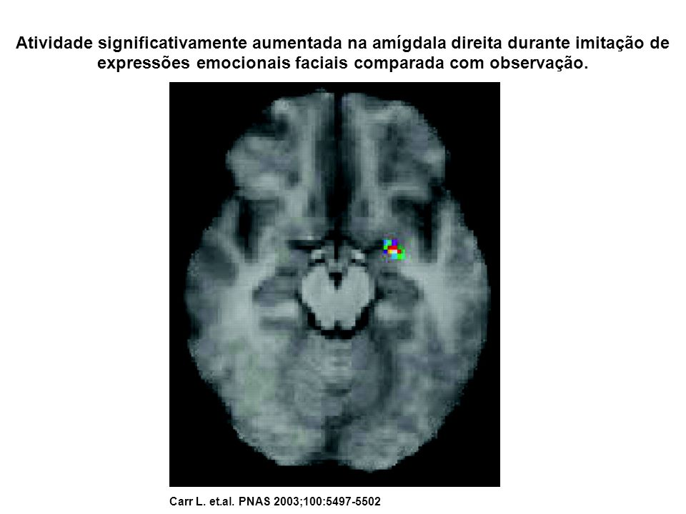 Atividade significativamente aumentada na amígdala direita durante imitação de expressões emocionais faciais comparada com observação.