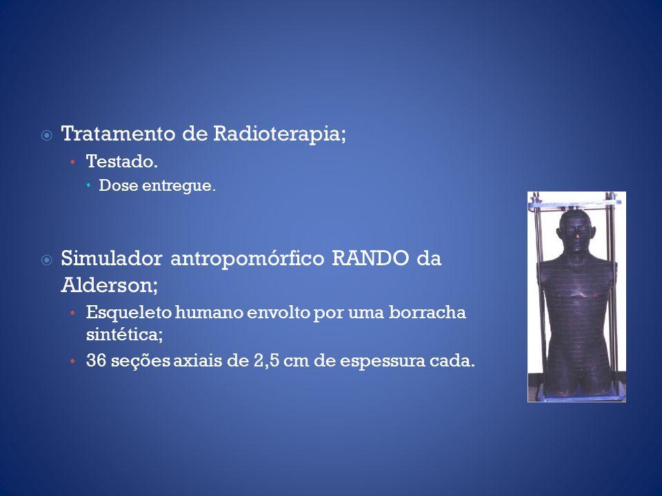 Tratamento de Radioterapia;