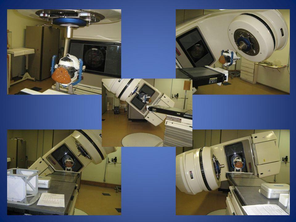 Essas imagens mostram os posicionamentos de gantry e mesa para os cinco arcos utilizados na irradiação.