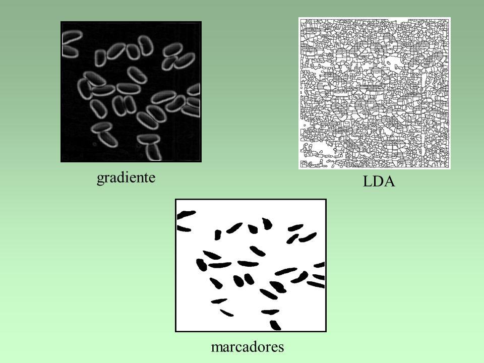 gradiente LDA marcadores
