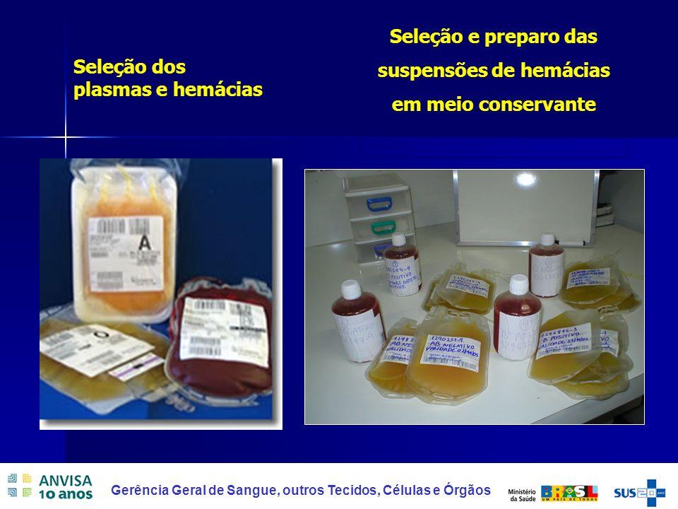 Seleção e preparo das suspensões de hemácias em meio conservante
