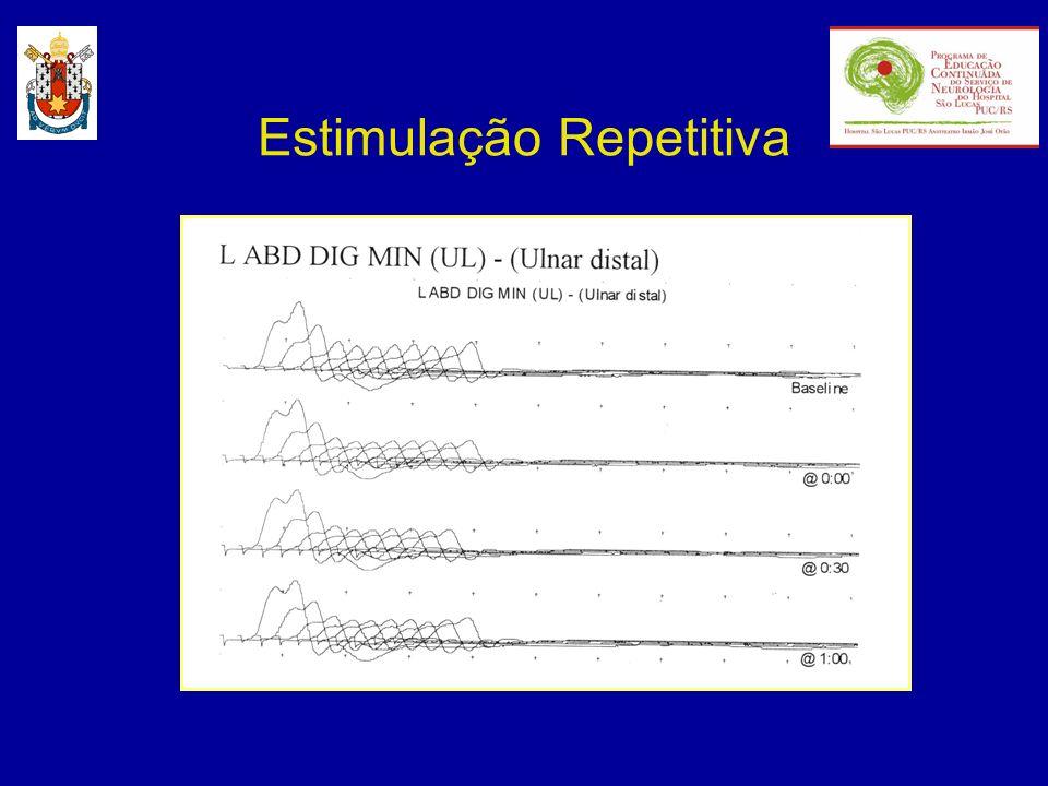 Estimulação Repetitiva