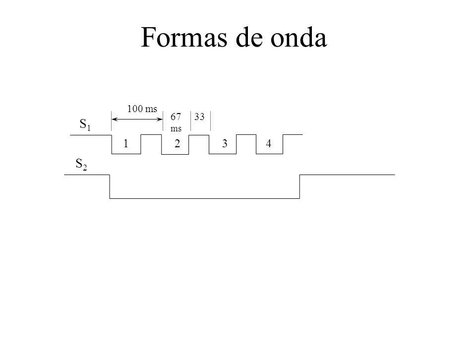 Formas de onda S1 S2 100 ms 67 ms 33 1 2 3 4
