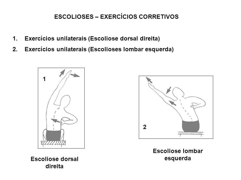 ESCOLIOSES – EXERCÍCIOS CORRETIVOS Escoliose lombar esquerda