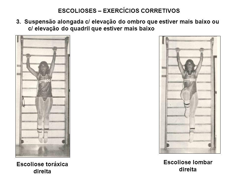 ESCOLIOSES – EXERCÍCIOS CORRETIVOS