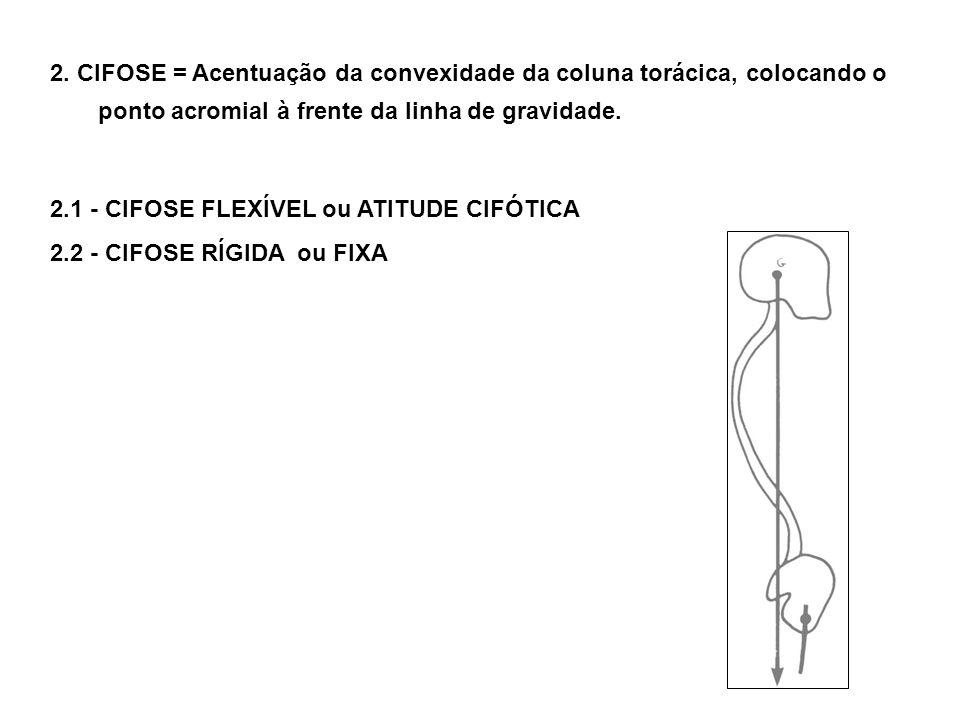 2. CIFOSE = Acentuação da convexidade da coluna torácica, colocando o ponto acromial à frente da linha de gravidade.