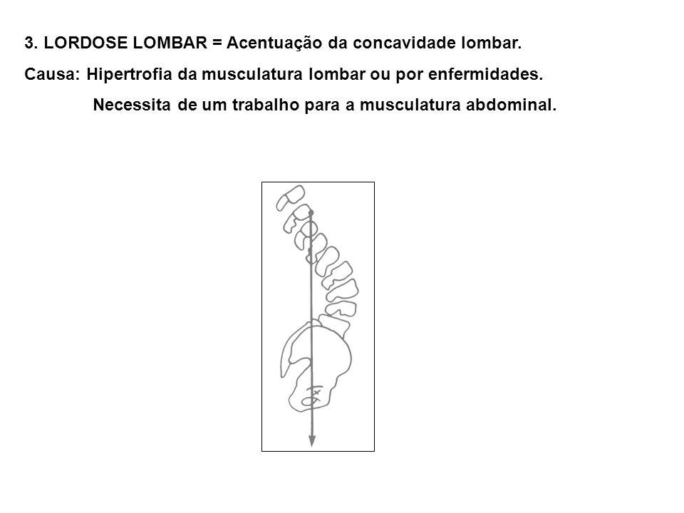 3. LORDOSE LOMBAR = Acentuação da concavidade lombar.