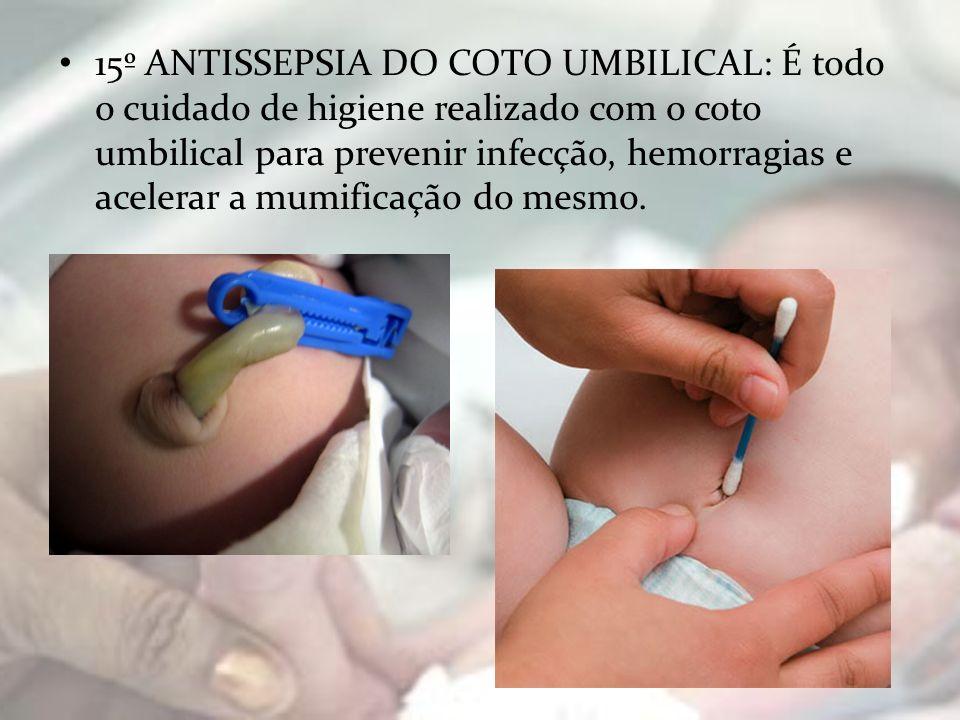 15º ANTISSEPSIA DO COTO UMBILICAL: É todo o cuidado de higiene realizado com o coto umbilical para prevenir infecção, hemorragias e acelerar a mumificação do mesmo.