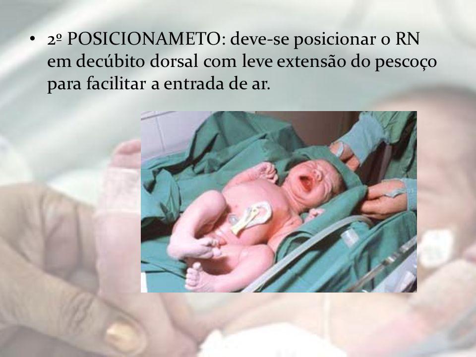 2º POSICIONAMETO: deve-se posicionar o RN em decúbito dorsal com leve extensão do pescoço para facilitar a entrada de ar.