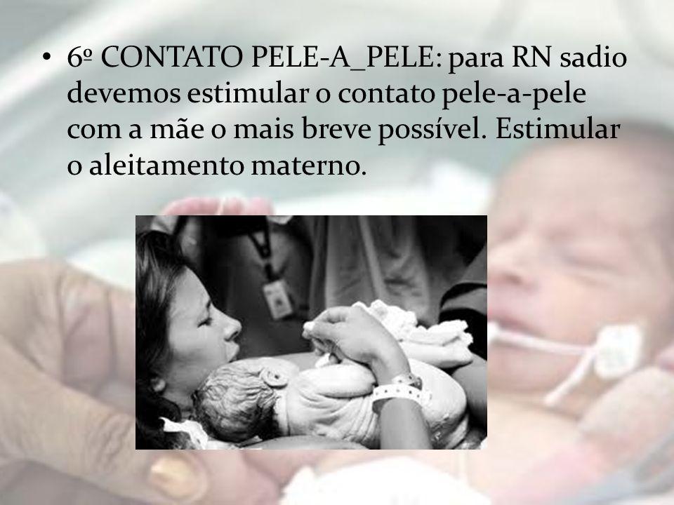6º CONTATO PELE-A_PELE: para RN sadio devemos estimular o contato pele-a-pele com a mãe o mais breve possível.