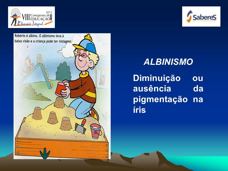 ALBINISMO Diminuição ou ausência da pigmentação na íris