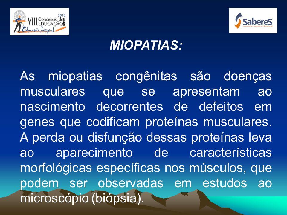 MIOPATIAS: