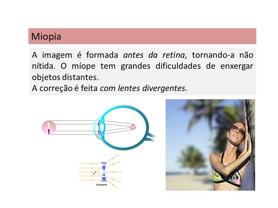 Miopia A imagem é formada antes da retina, tornando-a não nítida. O míope tem grandes dificuldades de enxergar objetos distantes.