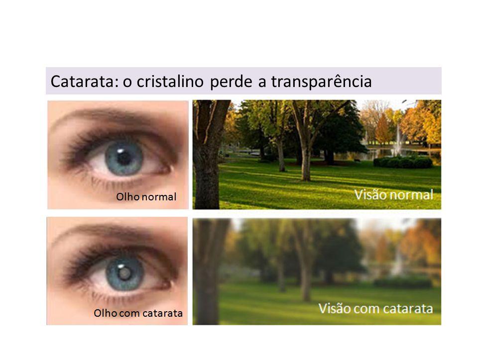 Catarata: o cristalino perde a transparência