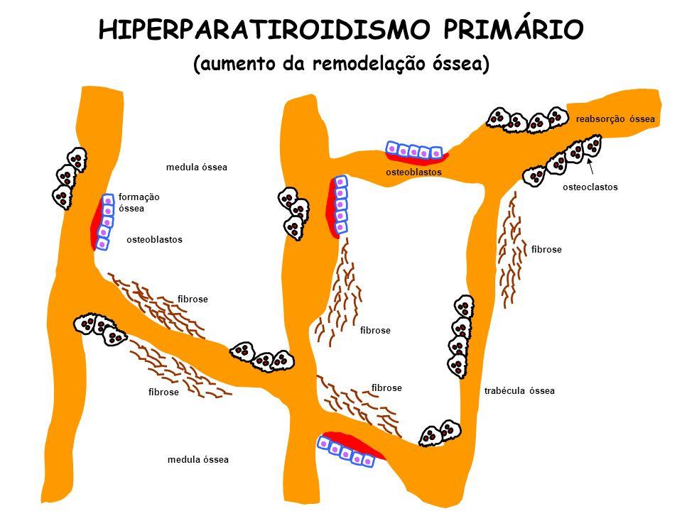 HIPERPARATIROIDISMO PRIMÁRIO (aumento da remodelação óssea)