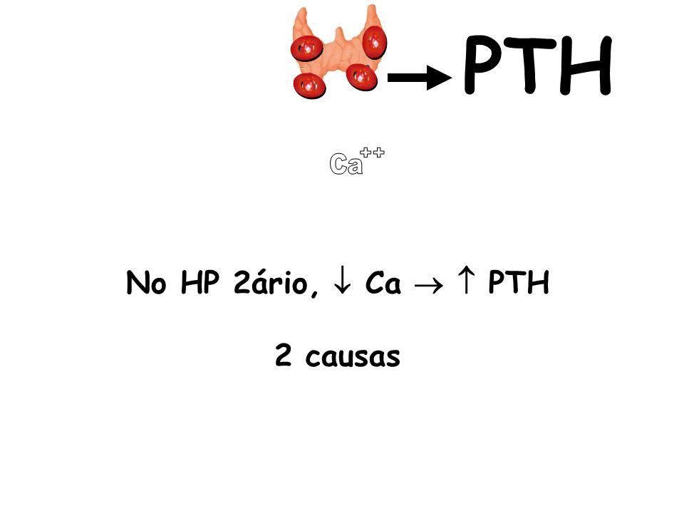 PTH Ca ++ No HP 2ário,  Ca   PTH 2 causas