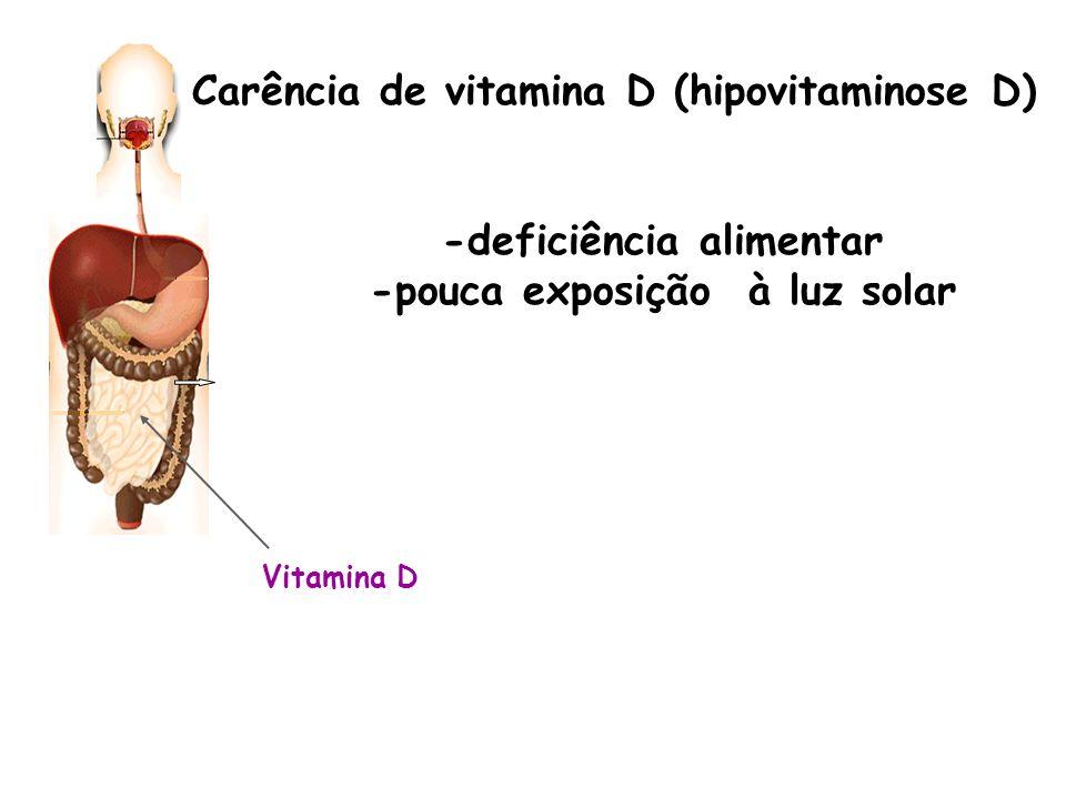 -deficiência alimentar -pouca exposição à luz solar