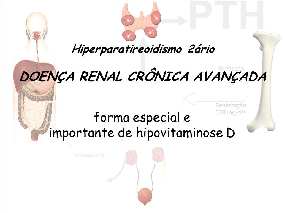 Hiperparatireoidismo 2ário DOENÇA RENAL CRÔNICA AVANÇADA