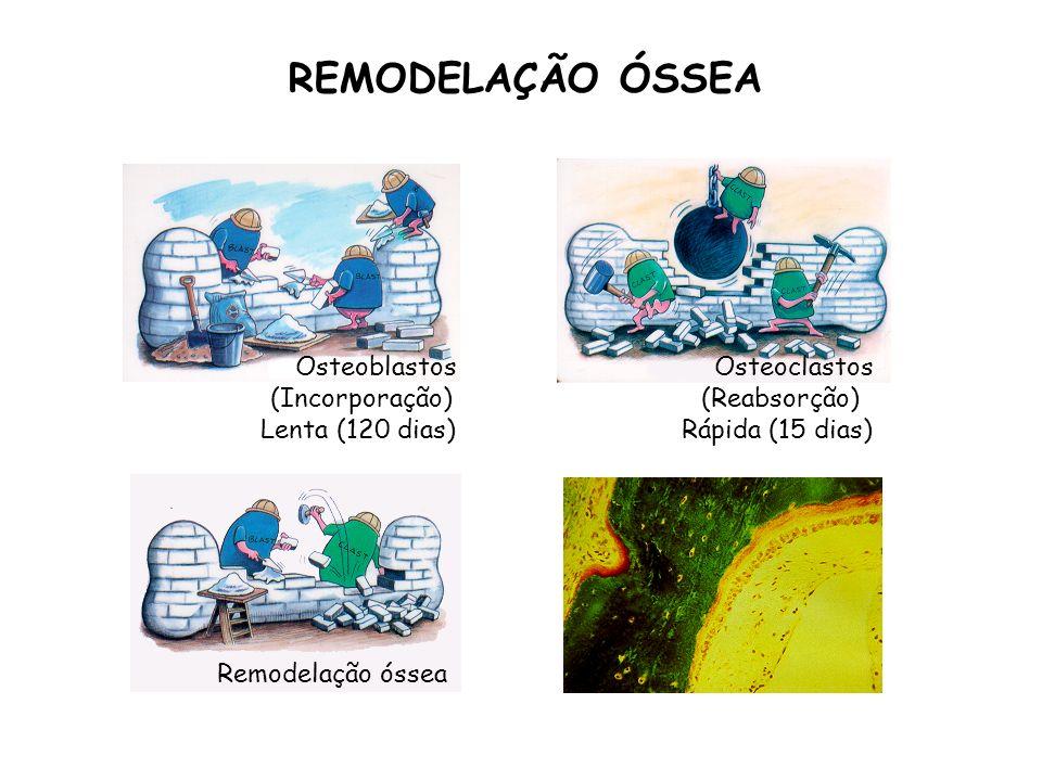 REMODELAÇÃO ÓSSEA Osteoblastos Osteoclastos (Incorporação)