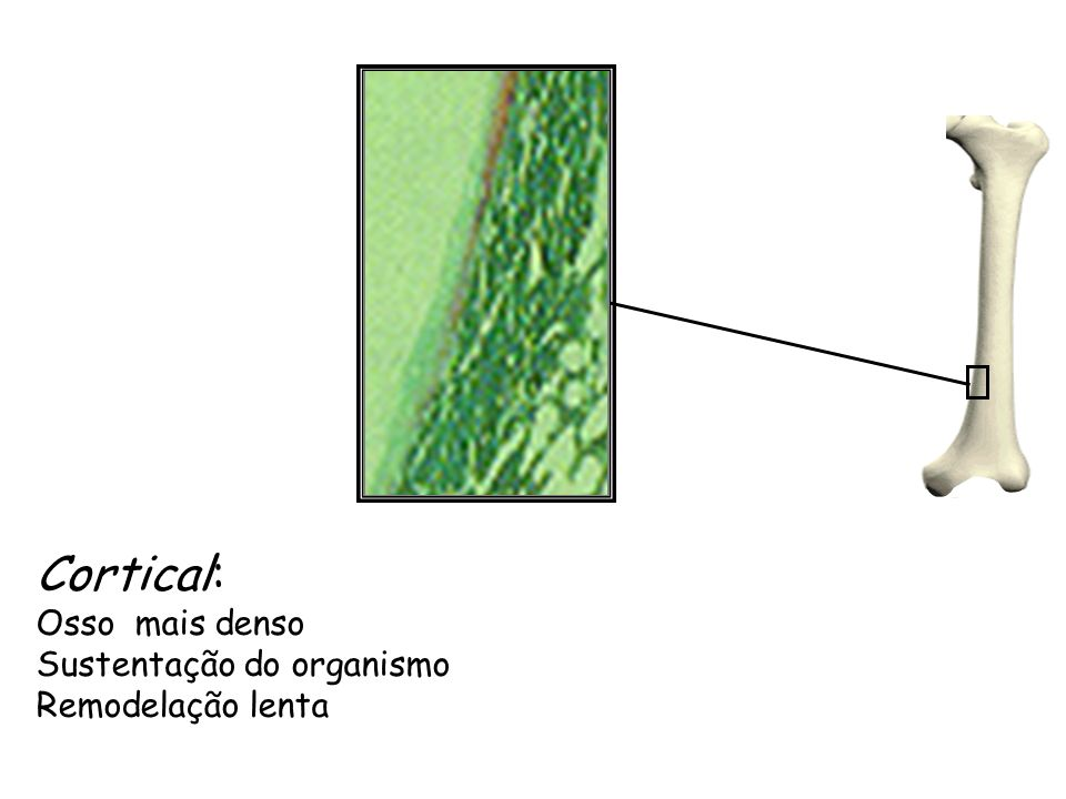 Cortical: Osso mais denso Sustentação do organismo Remodelação lenta