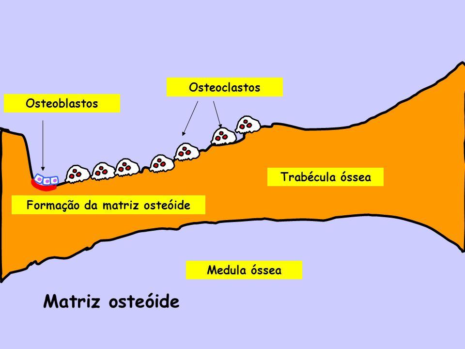 Formação da matriz osteóide