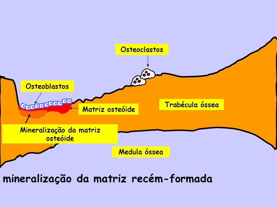 Mineralização da matriz osteóide