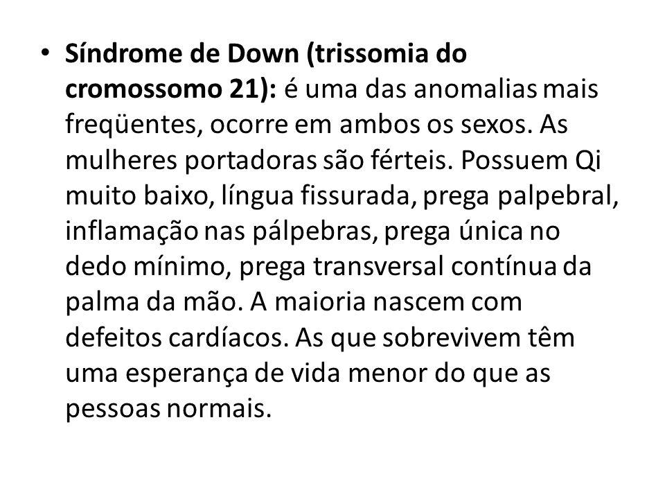 Síndrome de Down (trissomia do cromossomo 21): é uma das anomalias mais freqüentes, ocorre em ambos os sexos.