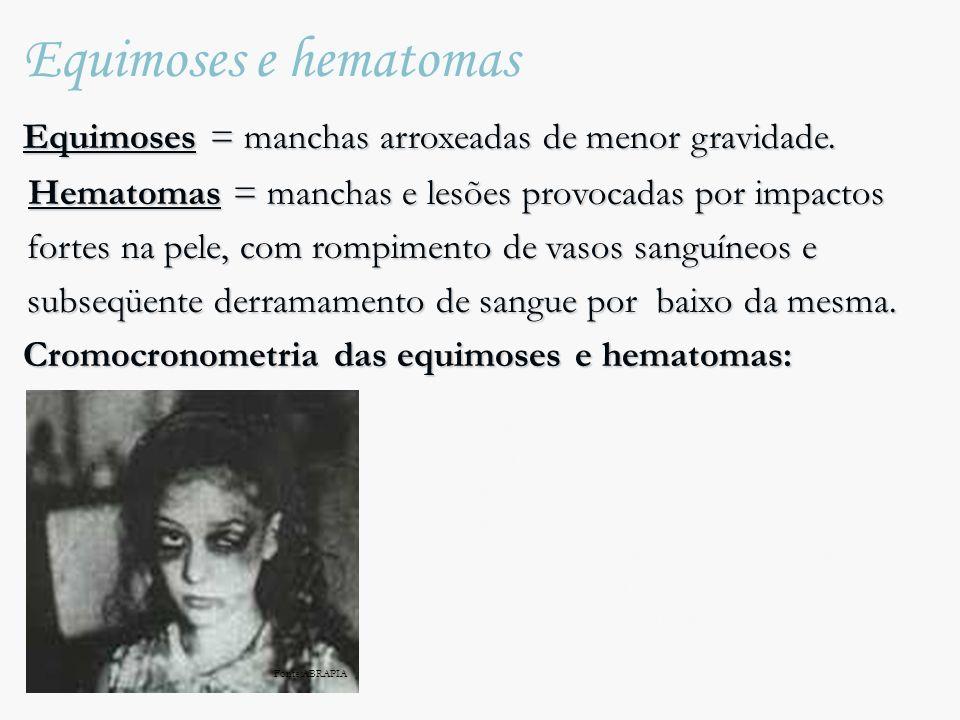 Equimoses e hematomas Equimoses = manchas arroxeadas de menor gravidade.