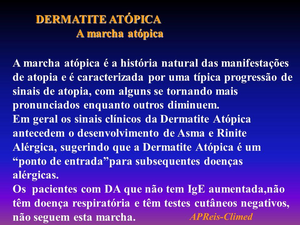 DERMATITE ATÓPICA A marcha atópica