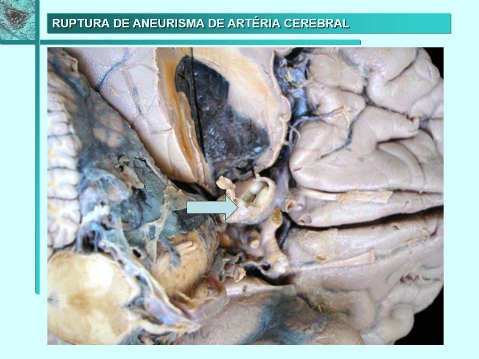 RUPTURA DE ANEURISMA DE ARTÉRIA CEREBRAL