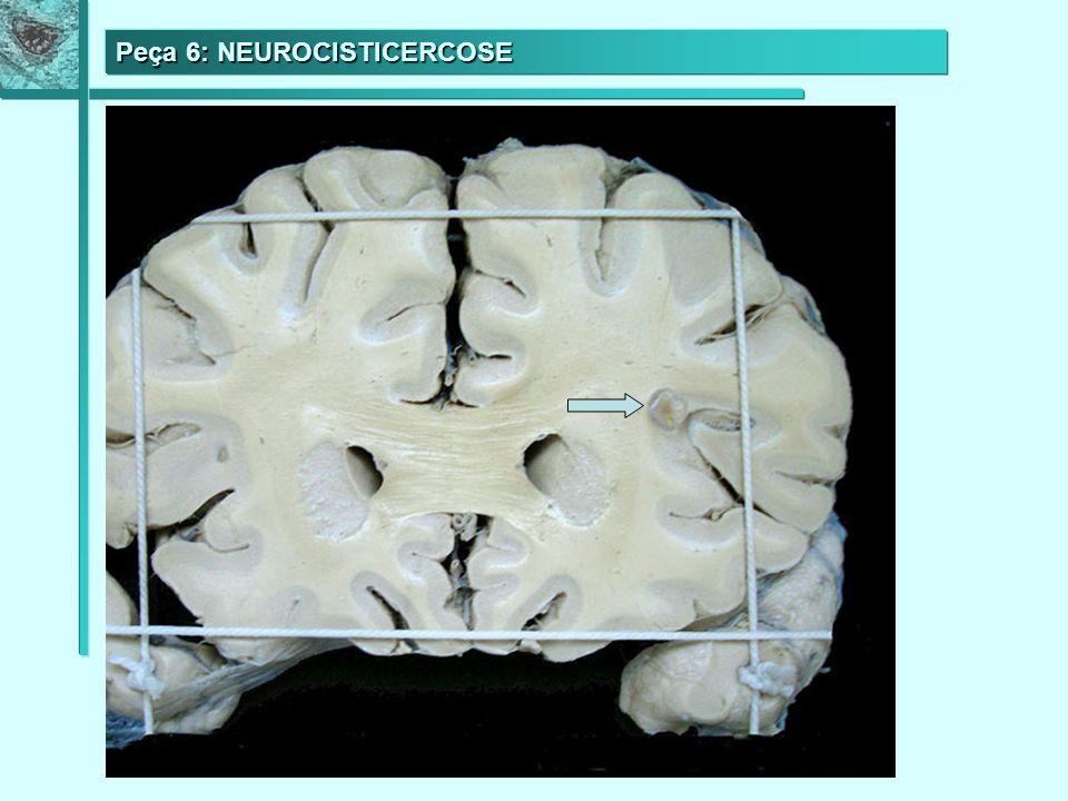 Peça 6: NEUROCISTICERCOSE