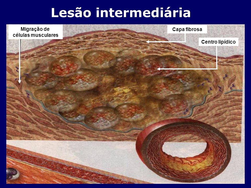 Lesão intermediária Migração de Capa fibrosa células musculares