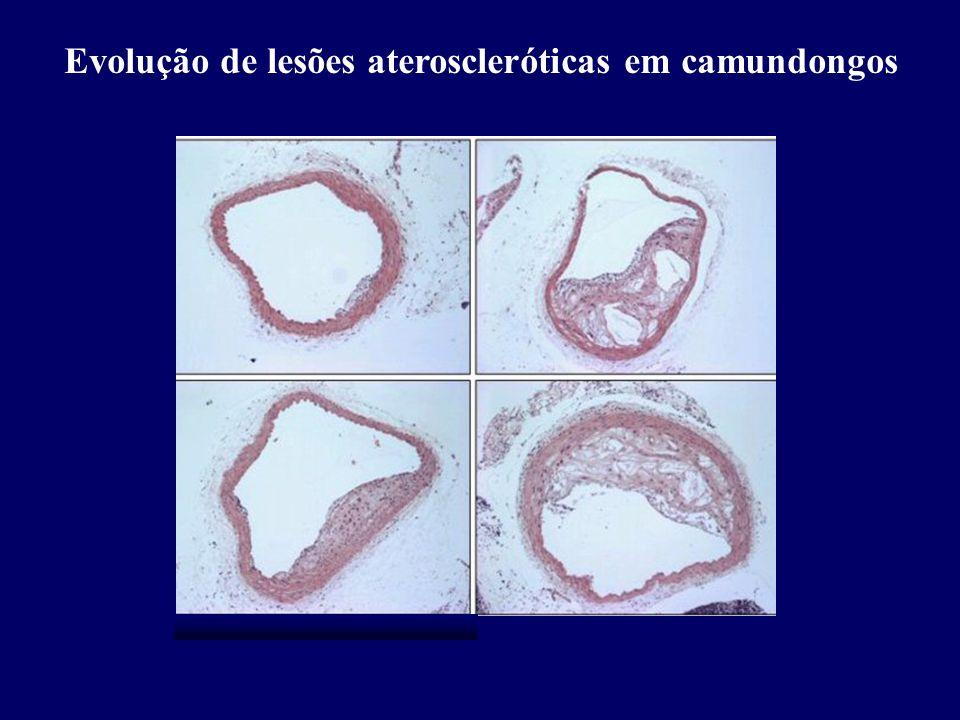 Evolução de lesões ateroscleróticas em camundongos
