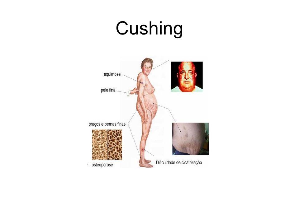 Cushing