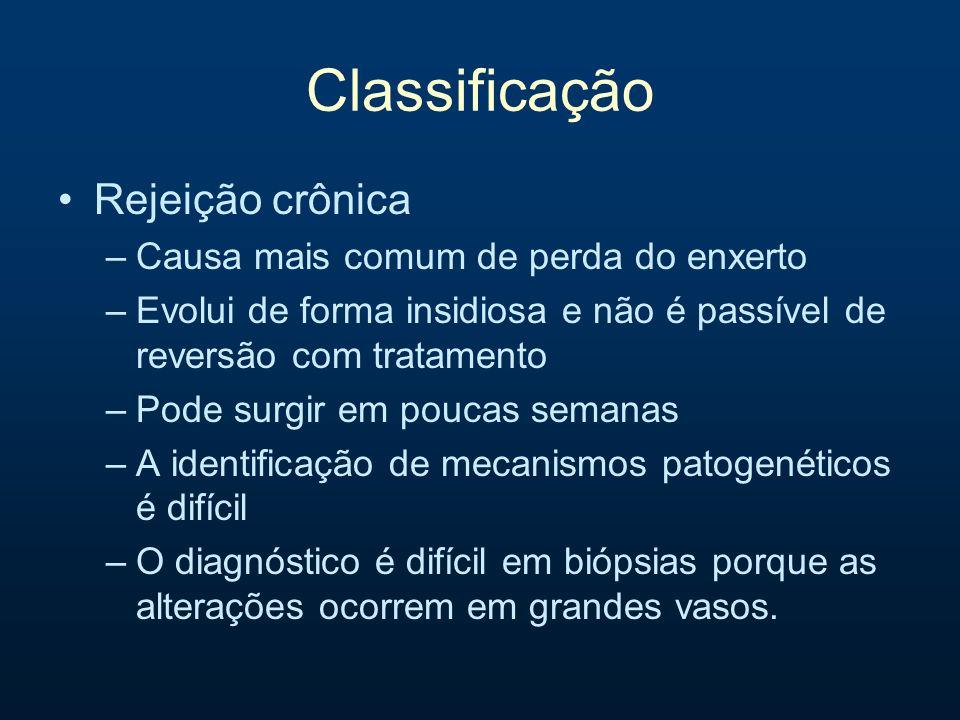 Classificação Rejeição crônica Causa mais comum de perda do enxerto