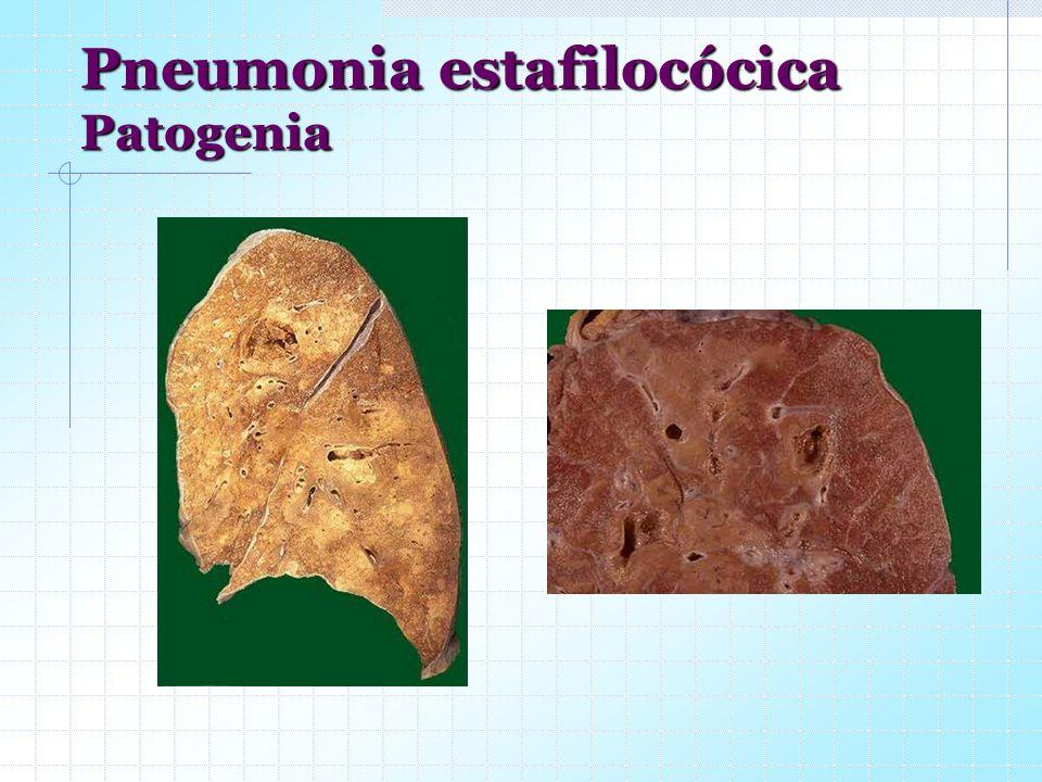 Pneumonia estafilocócica Patogenia