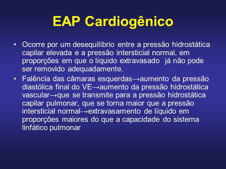 EAP Cardiogênico