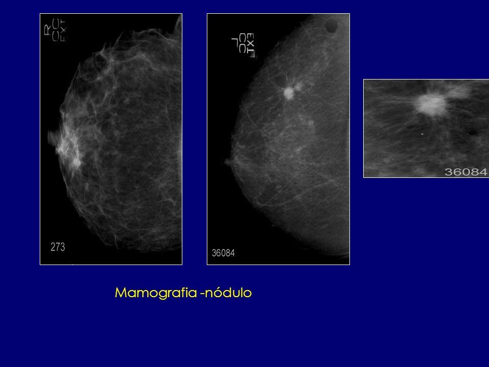 Mamografia -nódulo