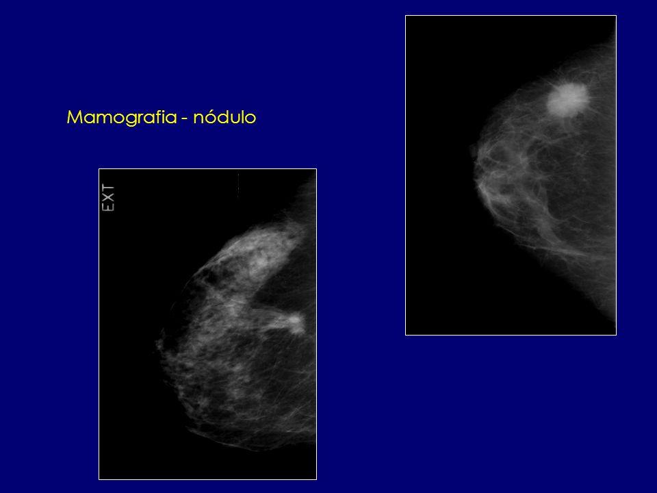 Mamografia - nódulo
