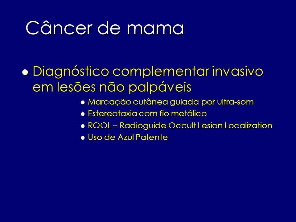 Câncer de mama Diagnóstico complementar invasivo em lesões não palpáveis. Marcação cutânea guiada por ultra-som.