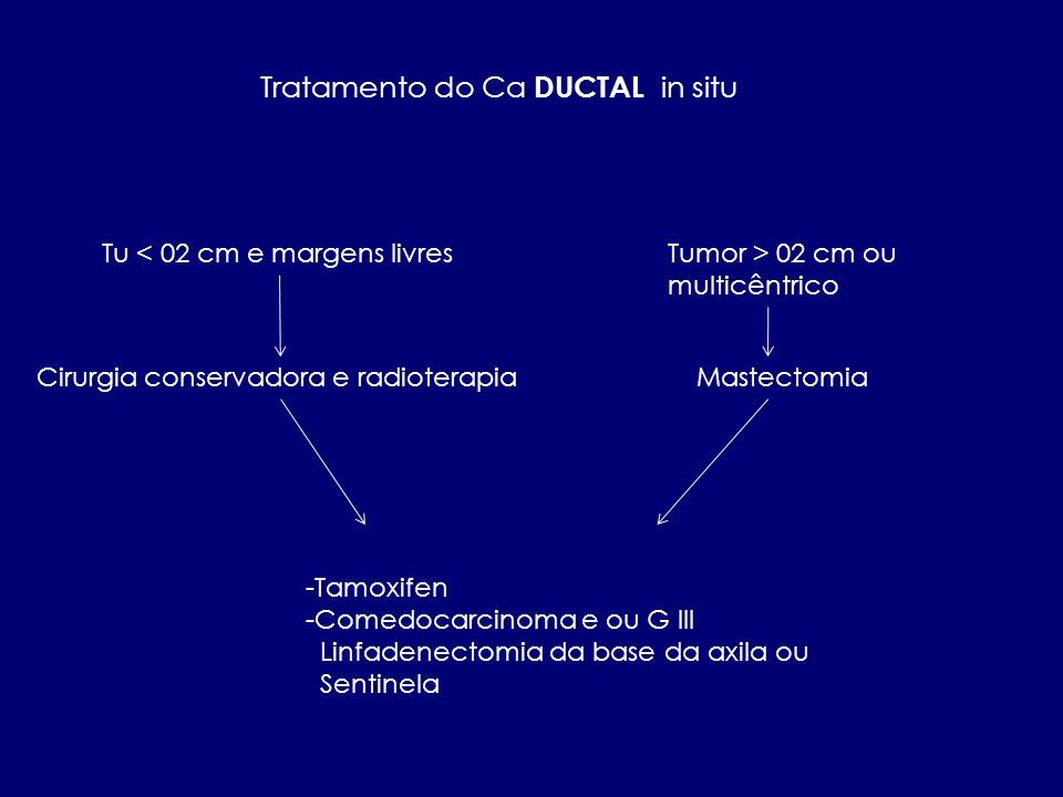 Tratamento do Ca DUCTAL in situ